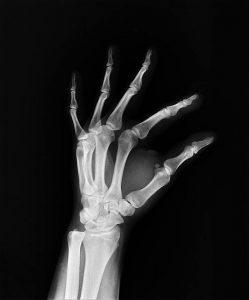 Få tid til en røntgenundersøgelse i København