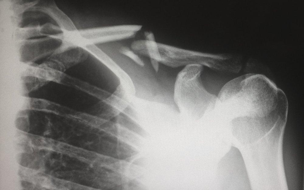 Hvornår har jeg brug for en røntgenundersøgelse?
